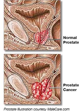 prostate-cancer-illustration